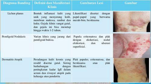 Bentuk Umum Dermatitis dengan dermatitis