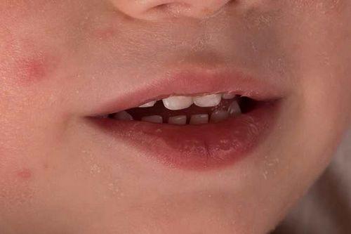 Gejala Gonore pada Anak dan Dewasa Pendarahan selama periode Anda