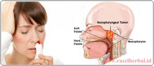 Kanker Nasofaring ini menyebar
