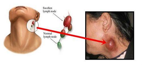 Pembengkakan Kelenjar Getah Bening di Leher - Penyebab dan Pengobatannya dan kepala dapat meredakan