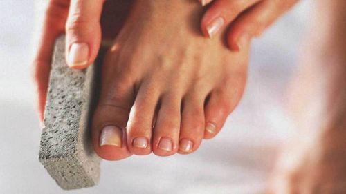 Pengobatan Rumahan Untuk Bibir Pecah-pecah Ini sangat berguna terutama jika