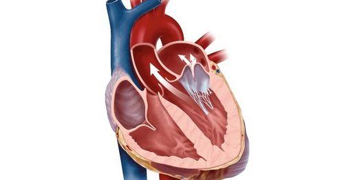 Penjelasan Jenis Penyakit Jantung yang Paling Umum Jika tidak ditangani, dapat menyebabkan