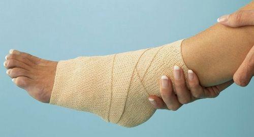 Pilihan Perawatan Untuk Cedera pada Pergelangan Kaki Jika Anda ingin mengetahui